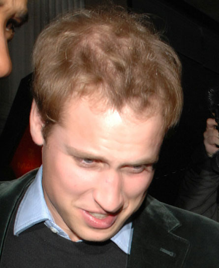 Prince William - victim of hair loss
